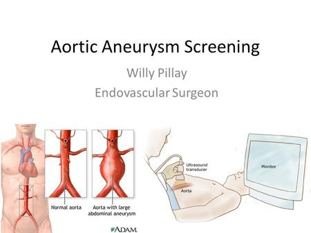 Aortic Aneurysm Screening Willy Pillay Endovascular Surgeon.