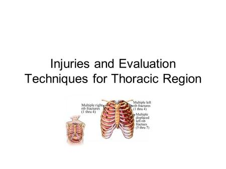 Injuries and Evaluation Techniques for Thoracic Region.