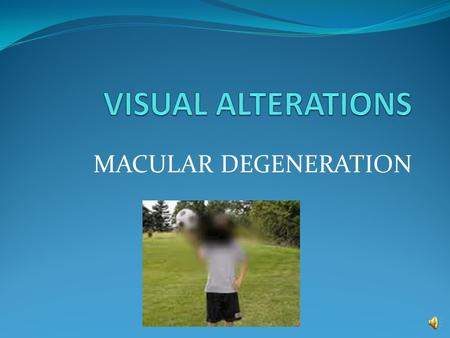 MACULAR DEGENERATION Macular Degeneration Types: -Atrophic (age-related) :dry -Exudative :wet Populations at Risk: Greater than 60 yrs. Old Females >