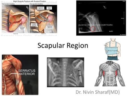 Scapular Region Dr. Nivin Sharaf(MD). Objectives Know the landmarks of the bony structures of the shoulder/axillary regions Know the rotator cuff muscles,