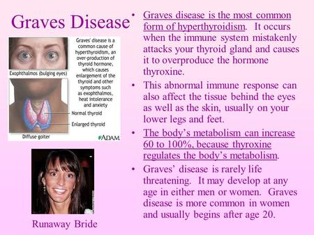 Graves Disease Graves disease is the most common form of hyperthyroidism. It occurs when the immune system mistakenly attacks your thyroid gland and causes.