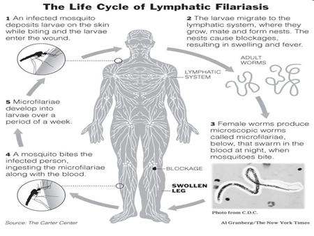 .. Lymphatic filariasis Lymphatic filariasis (also known as elephantiasis) is a parasitic disease caused by, three types of parasitic worms: Wuchereria.