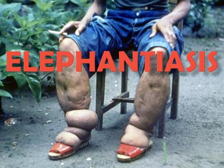  Elephantiasis is a disease that is characterized by the thickening of the skin and underlying tissues, especially in legs and male genitals.  In some.