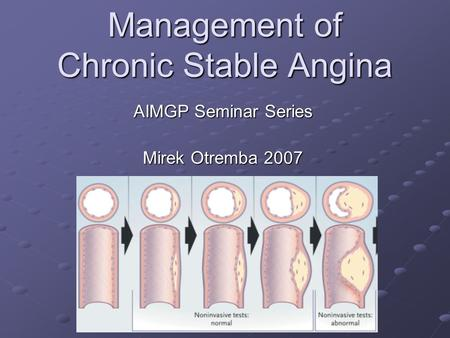 Management of Chronic Stable Angina AIMGP Seminar Series Mirek Otremba 2007.