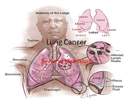 Lung Cancer By Jarryd Maddaford. How you get lung cancer Lung cancer is mostly given to people through smoking. 1 time out of 10 lung cancer is given.