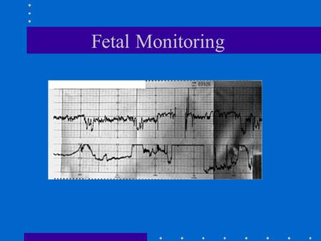 Fetal Monitoring Introduction 1600's Kilian proposes the use of fetal heart rate to diagnose fetal distress 1893 criteria for determining fetal distress.