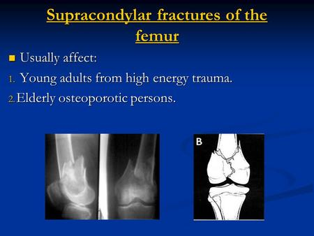 Supracondylar fractures of the femur Usually affect: Usually affect: 1. Young adults from high energy trauma. 2. Elderly osteoporotic persons.