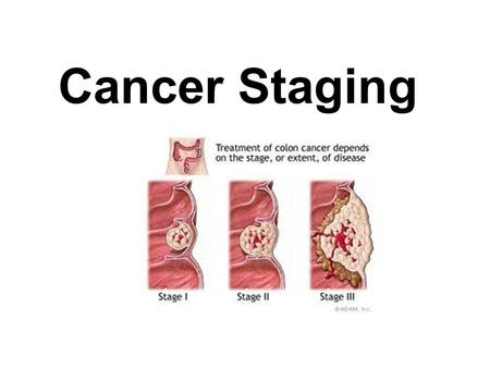 Cancer Staging. What is cancer staging? Staging describes the severity of a person's cancer based on the extent of the original (primary) tumor and whether.