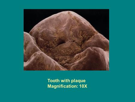 Tooth with plaque Magnification: 10X.