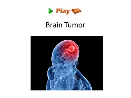 Brain Tumor. Introduction A tumor is a mass of tissue that's formed by an accumulation of abnormal cells. Normally, the cells in your body age, die, and.