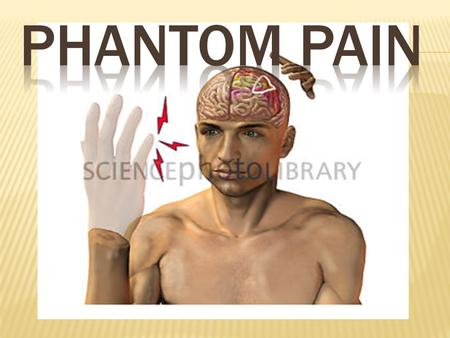  Phantom pain is pain that feels like it's coming from a body part that's no longer there. Doctors once believed this post-amputation phenomenon was.