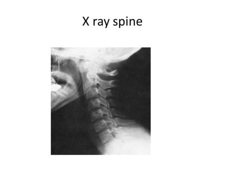 X ray spine.