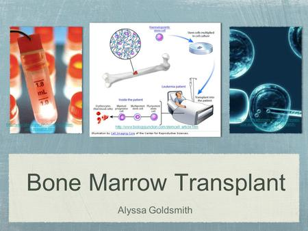 Bone Marrow Transplant Alyssa Goldsmith  cells-research.html  due-australian-stem-cell-research-