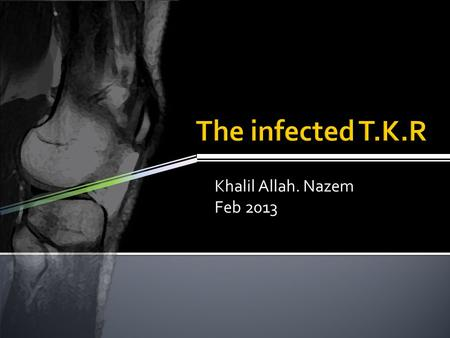 Khalil Allah. Nazem Feb 2013.  In the face of an increasing prevalence of TKA, intensified efforts at infection prevention seem logical to reduce the.