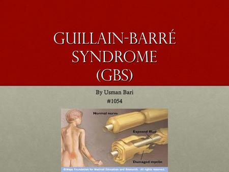 Guillain-Barré syndrome (GBS) By Usman Bari #1054.