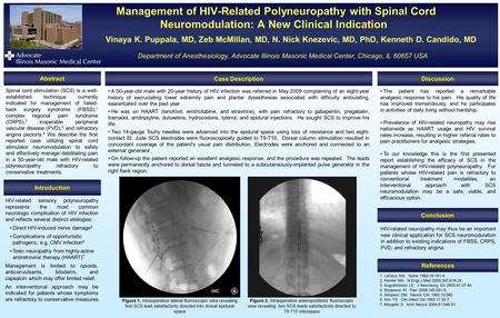 Management of HIV-Related Polyneuropathy with Spinal Cord Neuromodulation: A New Clinical Indication Management of HIV-Related Polyneuropathy with Spinal.
