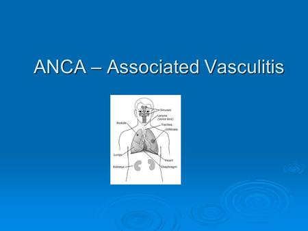 ANCA – Associated Vasculitis