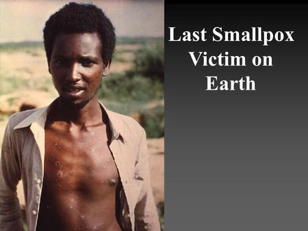 Last Smallpox Victim on Earth