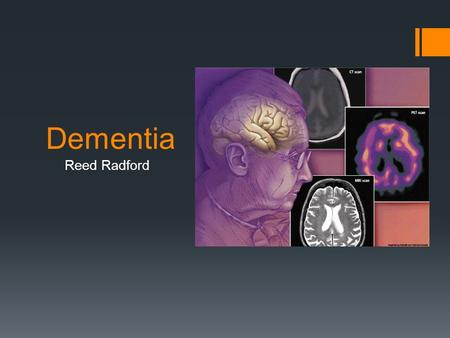 Dementia Reed Radford. What is dementia?  Dementia is a serious loss of global cognitive ability, beyond what might be expected from normal aging. 