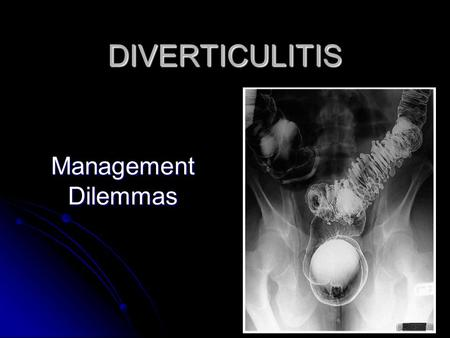 DIVERTICULITIS Management Dilemmas. Diverticulitis Common in Western and industrialised societies ~ 300,000 hospitalisations yearly in the United States.