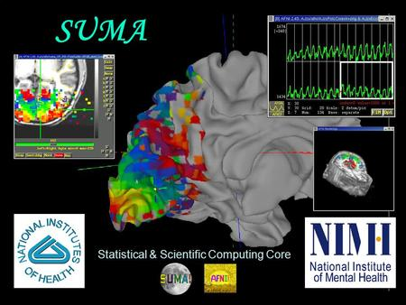 29 Oct 2009 SSCC/NIMH 1 SUMA Statistical & Scientific Computing Core.