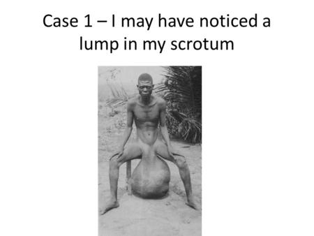 Case 1 – I may have noticed a lump in my scrotum.