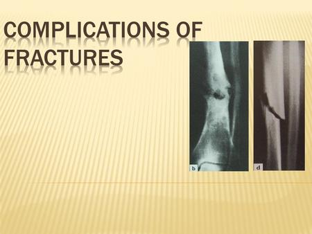 COMPLICATION OF FRACTURE GeneralLocal Early Late.