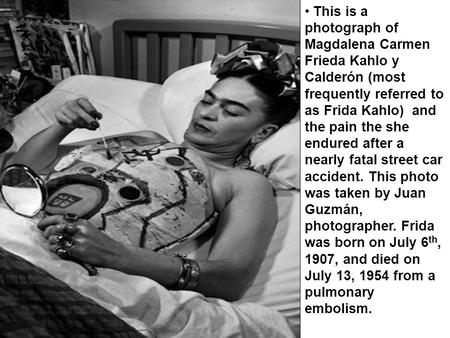This is a photograph of Magdalena Carmen Frieda Kahlo y Calderón (most frequently referred to as Frida Kahlo) and the pain the she endured after a nearly.