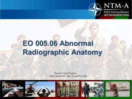 EO Abnormal Radiographic Anatomy