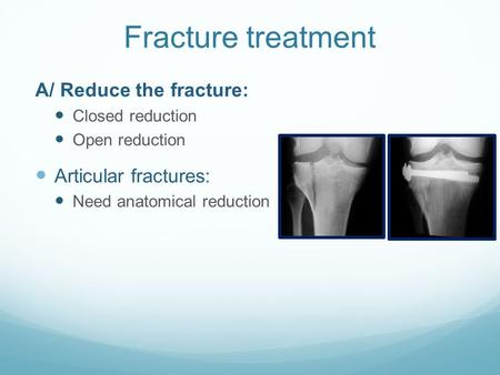 Fracture treatment A/ Reduce the fracture: Closed reduction Open reduction Articular fractures: Need anatomical reduction.
