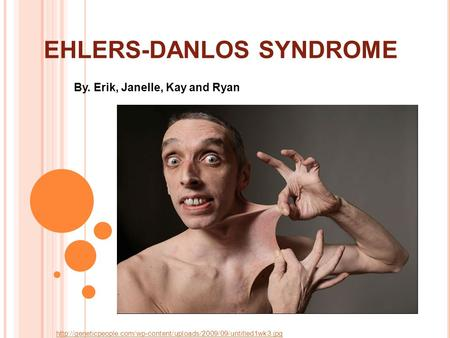 EHLERS-DANLOS SYNDROME By. Erik, Janelle, Kay and Ryan