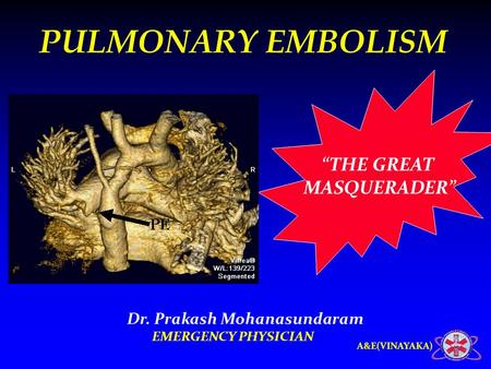 "A&E(VINAYAKA) ""THE GREAT MASQUERADER"" PULMONARY EMBOLISM Dr. Prakash Mohanasundaram EMERGENCY PHYSICIAN."