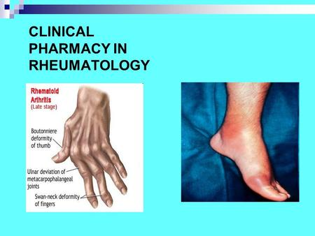 CLINICAL PHARMACY IN RHEUMATOLOGY. RHEUMATIC DISEASES Rheumatic diseases (rheumatism) are painful conditions that affect millions. These diseases cause.