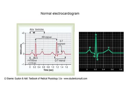 Normal electrocardiogram. P-Q or P-R Interval The time between the beginning of the P wave and the beginning of the QRS complex is the interval between.