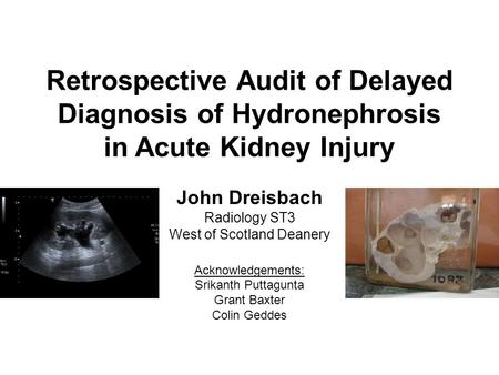 Retrospective Audit of Delayed Diagnosis of Hydronephrosis in Acute Kidney Injury John Dreisbach Radiology ST3 West of Scotland Deanery Acknowledgements: