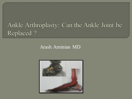 Ankle Arthroplasty: Can the Ankle Joint be Replaced ?