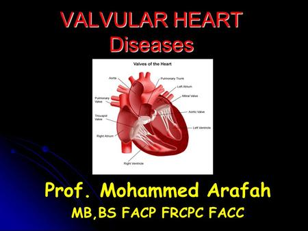 VALVULAR HEART Diseases Prof. Mohammed Arafah MB,BS FACP FRCPC FACC.