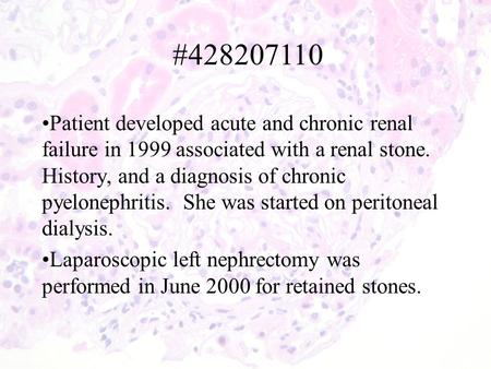 Patient developed acute and chronic renal failure in 1999 associated with a renal stone. History, and a diagnosis of chronic pyelonephritis. She was started.
