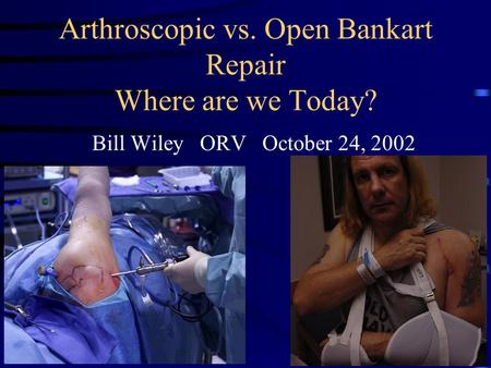 Arthroscopic vs. Open Bankart Repair Where are we Today? Bill Wiley ORV October 24, 2002.