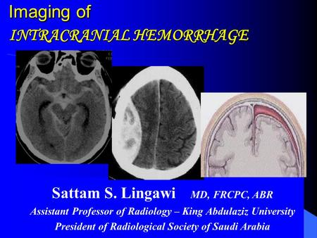 Imaging of INTRACRANIAL HEMORRHAGE