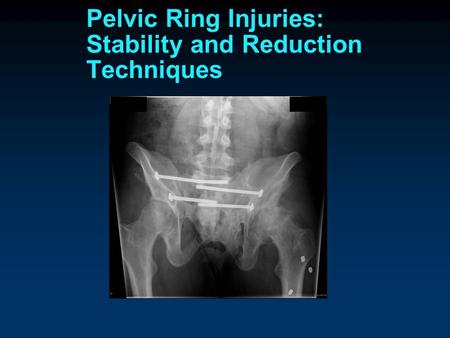 Pelvic Ring Injuries Classification of Pelvic Ring Injuries