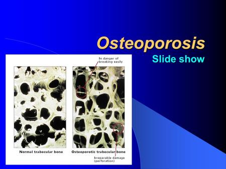 Osteoporosis Slide show. The Osteoporosis Landscape In India, an estimated 43 million women suffer from osteoporosis.