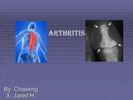 By: Chaseng X. Jared H. Arthritis. Nutrition Essential Questions  We learned that there are hundreds of kinds of arthritis diseases  It doesn't take.