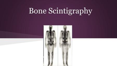 Bone Scintigraphy. What is Bone Scintigraphy? Bone Scan Uses radioactive tracers Finds problem areas in bones Uses a gamma camera.