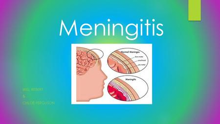 WILL REBERT & CHLOE FERGUSON Meningitis. Definition  It is an infection and inflammation of the fluid and membranes protecting the brain and spinal.