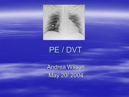 PE / DVT Andrea Wilson May 20/ 2004. Virchow's triad  Hypercoagulability  Stasis  Venous injury.
