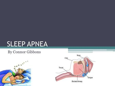 SLEEP APNEA By Connor Gibbons. What is Sleep Apnea? The stopping or halt of breathing during sleep Sleep depravation and oxygen depravation Testing is.