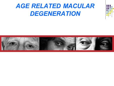 AGE RELATED MACULAR DEGENERATION. AMD epidemic of aging Prediction by United Nations 606 million over age 60 in 2000 will go to 2 billion by 2050 Population.