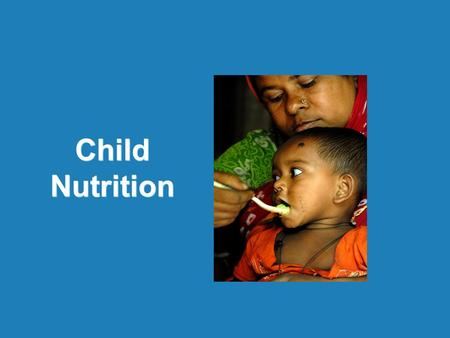Child Nutrition. Child Nutrition | MGIMS, Sewagram | 31 st Oct 2012 Clinical assessment –Obvious wasting, Edema Anthropometric measurements Biochemical.