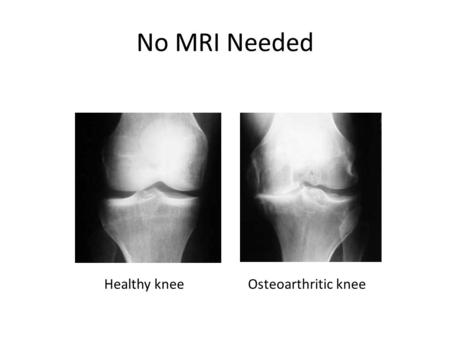 No MRI Needed Osteoarthritic kneeHealthy knee. Burden of Disease 39.4 million visits to physicians offices 750,000 hospitalizations OA cost $125 billion/year.